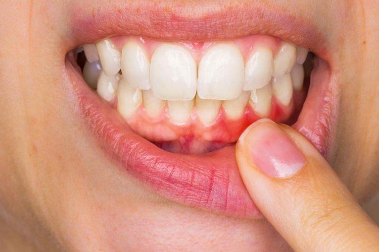 Diş Eti Hastalıkları Uzmanı Diş Eti Hastalıkları Tedavisi Cerrahisi